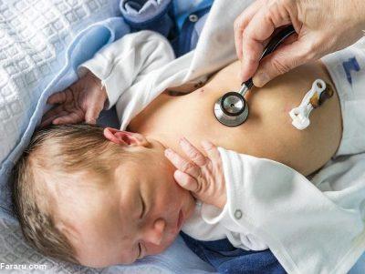 درجه زردی نوزاد و تعیین آن با جدول نوزادان