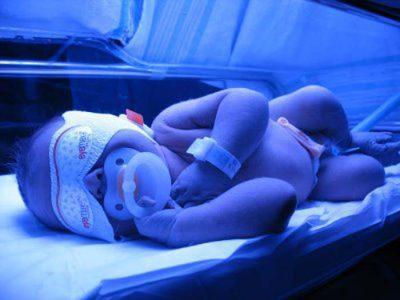 آیا دستگاه فتوتراپی پوست نوزاد را میسوزاند